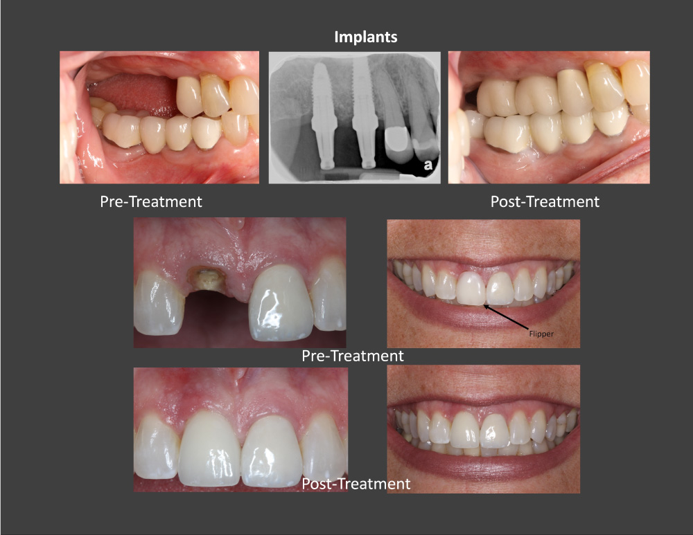 Sky Ridge Periodontics and Implants Smile Gallery